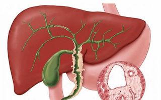 Что такое флегмонозный холецистит?