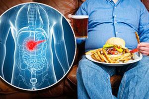 Употребление в пищу жирной или жареной пищи, алкоголя